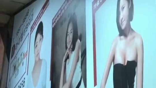 Chinese girls get dramatic plastic surgery.
